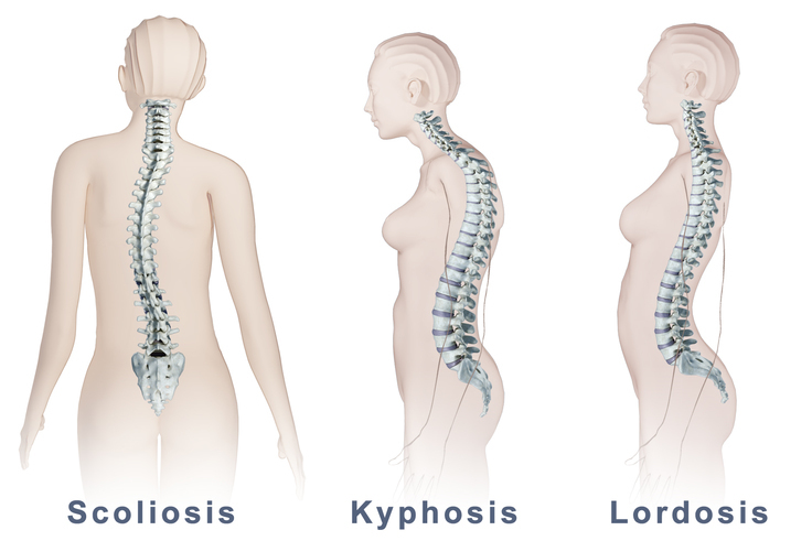 What Is Kyphosis (Hunchback) ? Definition, Symptoms, & Treatment